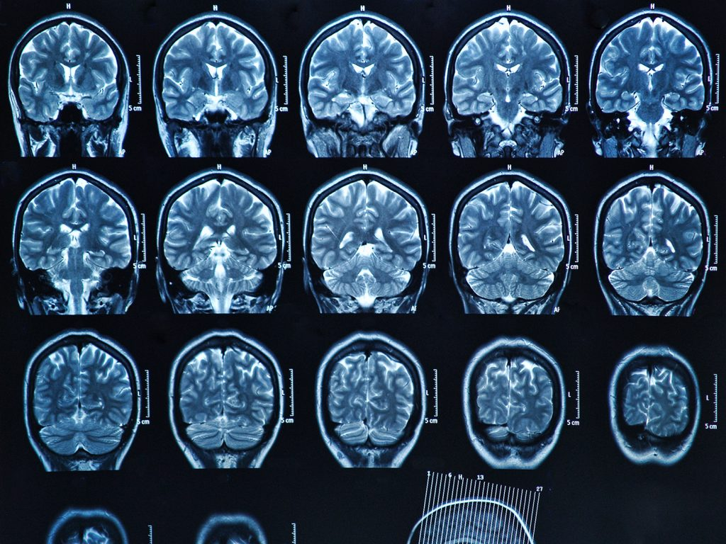The role of CT and MR in stroke patients