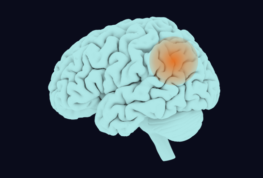 Stroke detection using radiology AI: a joint project between QMENTA and Quantib