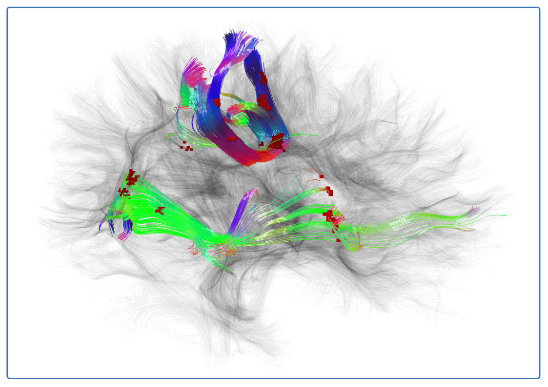 Simply and easily organize, classify, annotate and compliantly store your unstructured neuroimaging and associated data sets.